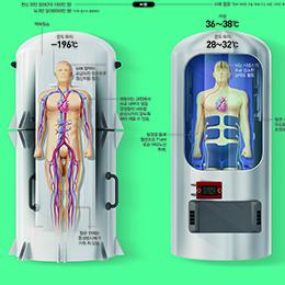 냉동VS동면, 우주여행에 누가 유리할까?