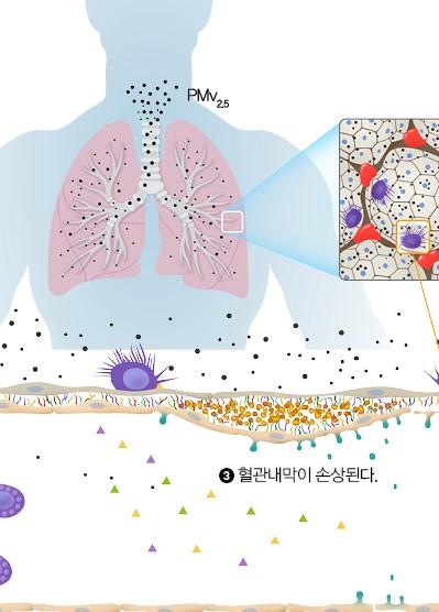 미세먼지가 혈관 손상을 일으키는 메커니즘
