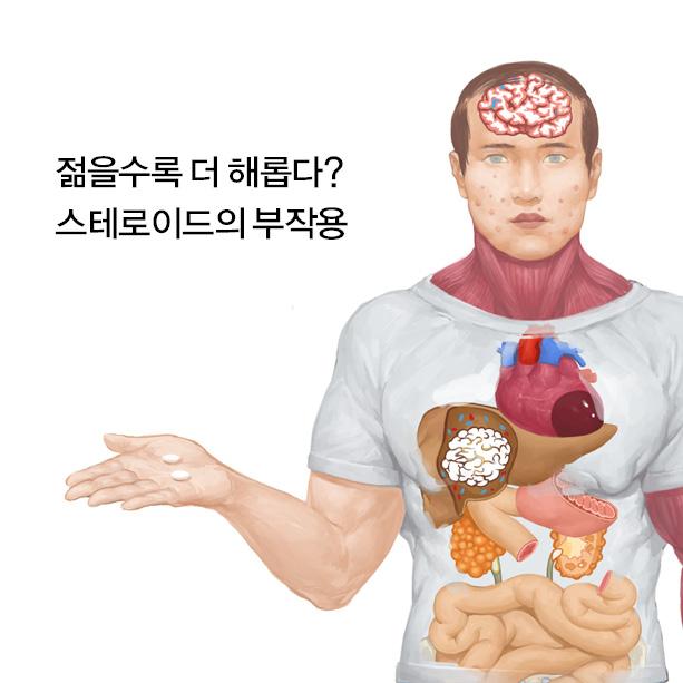 스테로이드 부작용