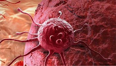 Part 3. 암 치료, 두 가지 트렌드