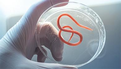 Part 2. 몸 속 생태계의 주인 - 기생충의 귀환