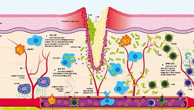 [Infographic] 소리 없는 아우성, 상처 입은 피부의 면역 전쟁