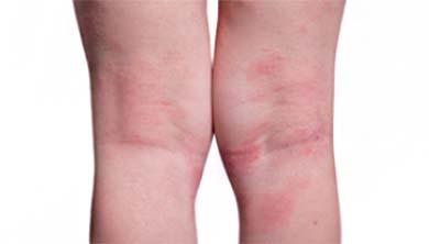[과학뉴스] 아토피 피부염이 스트레스 늘려