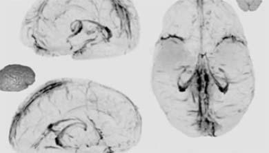 [과학뉴스] '뇌 하수구'로 치매 해결책 찾나