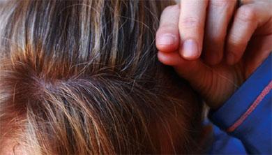 [과학뉴스] 젊은이의 흰머리, 유전자 돌연변이 탓