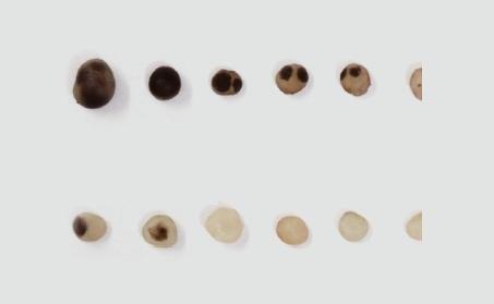 [과학뉴스]암세포, 지방산 연료 삼아 림프절 전이